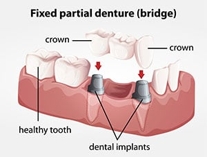 Illustration of a Fixed partial denture bridge