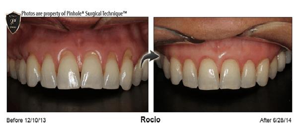 Pinhole® Gum Rejuvenation
